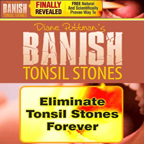 Banish Tonsil Stones